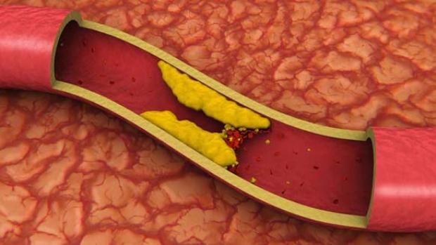 riješite se kolesterola