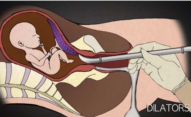kako izgleda abortus