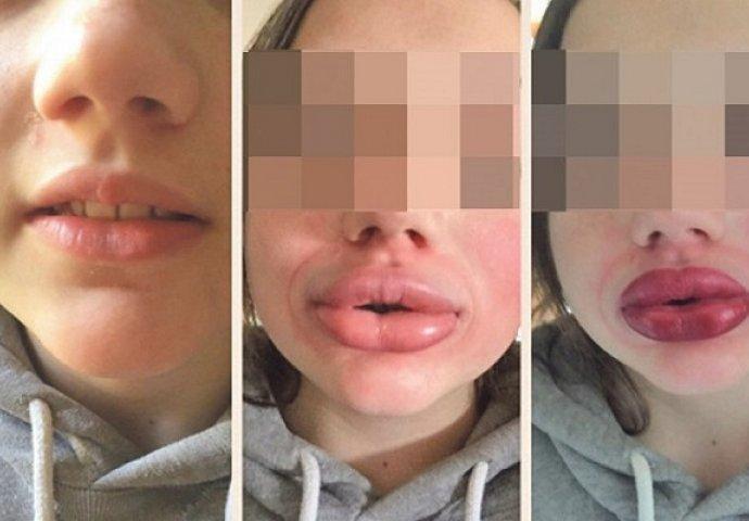 ŠOKANTAN TREND MEĐU MLADIMA: Povećavaju usne čašama za rakiju i pumpama