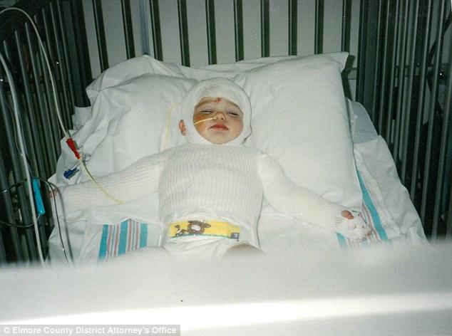 Kćerka oprostila majci koja ju je kao bebu stavila u vrelu pećnicu