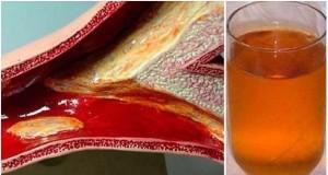 napitak za začepljene arterije