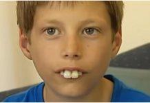 Ismijavali su ga zbog velikih prednjih zubi