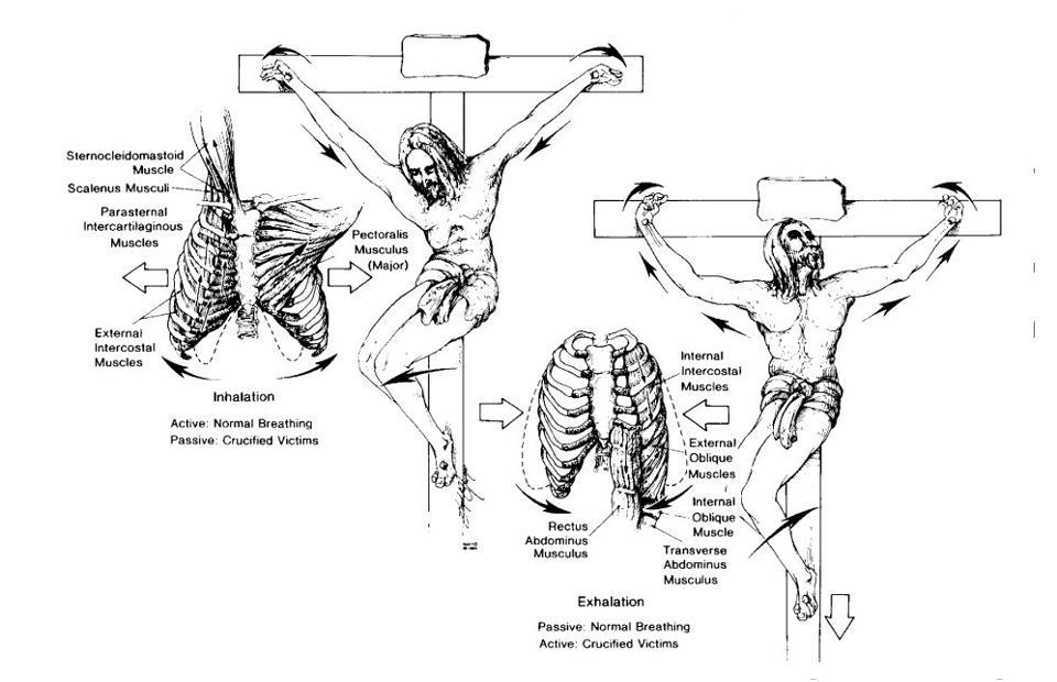 Raspeće kakvo je Isus doživio je medicinska katastrofa
