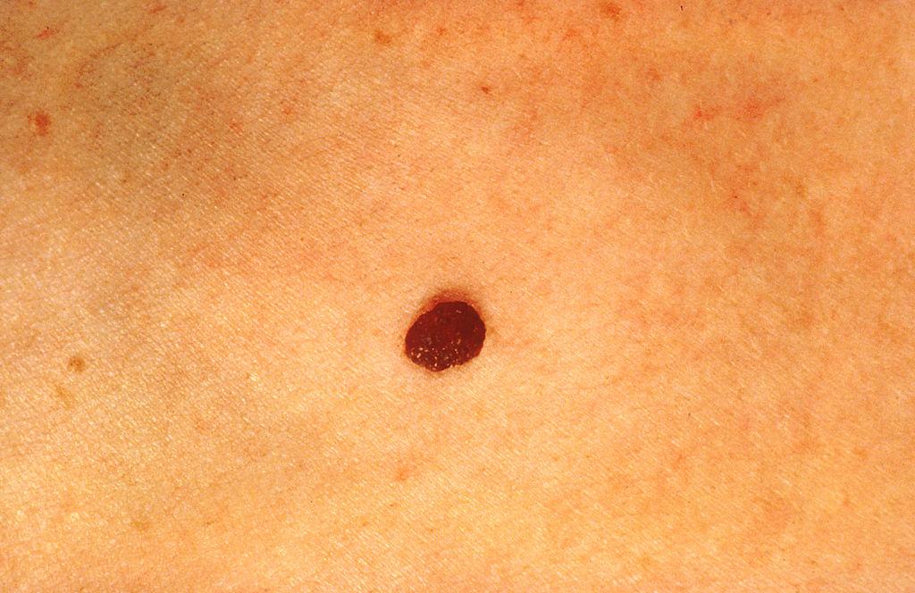 podmukli simptomi raka kože