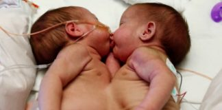 Mislili su da će sijamske blizanke umrijeti
