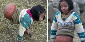 djevojčica bez nogu