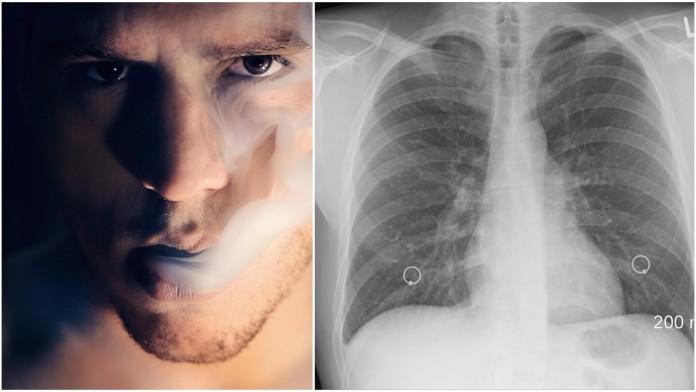 pluća cigarete