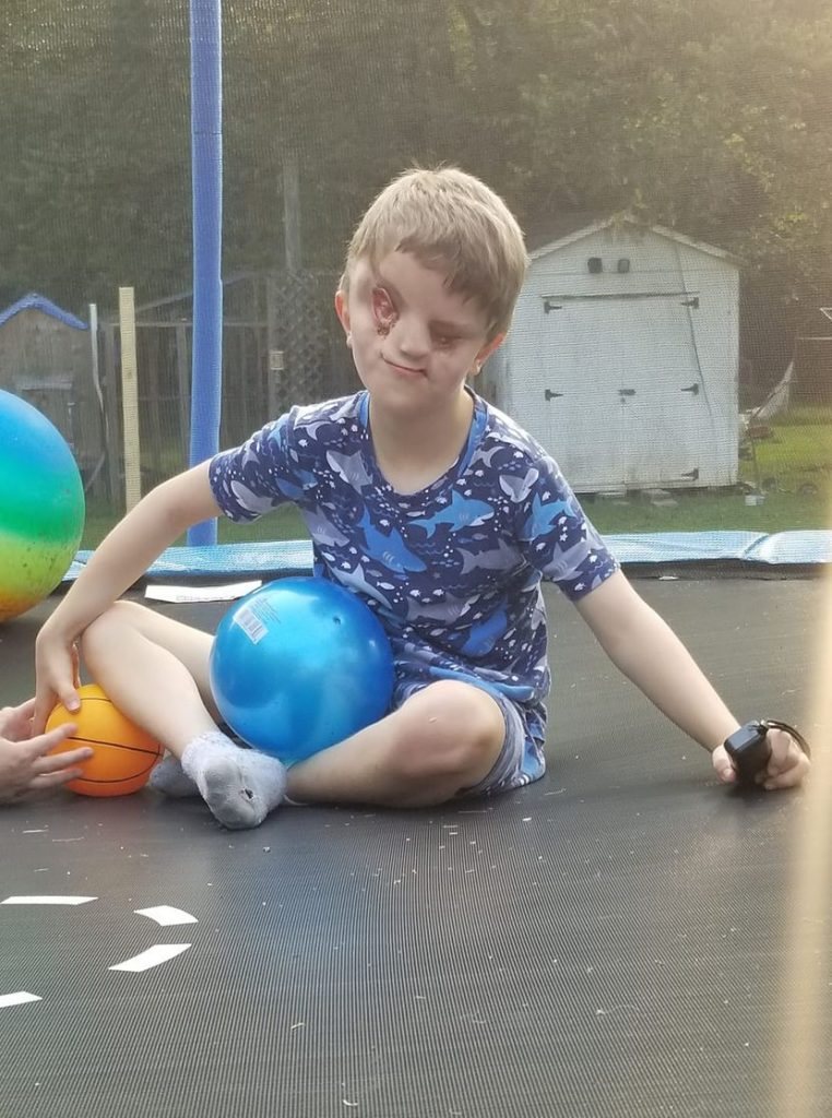 Dječak nema oči