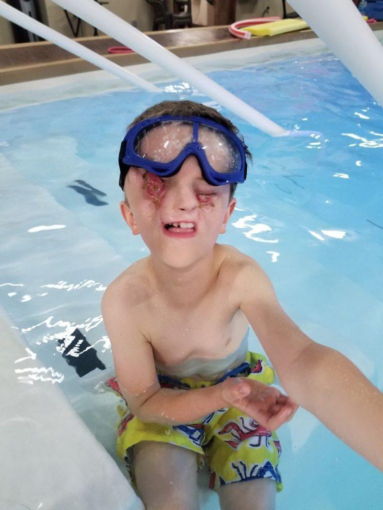 Dječak bez očiju na bazenu