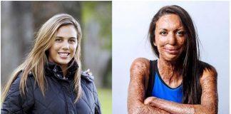 Ženi požar uništio lice