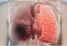 Što uzrokuje rak pluća