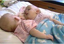 sijamske blizanke danas