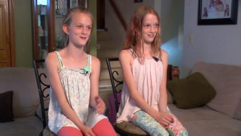 Sijamske blizanke razdvojene 10 godina