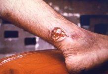 kožna bolest