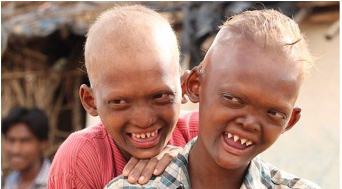 Dva brata imaju rijetku bolest zbog koje ostaju bez dijelova lica