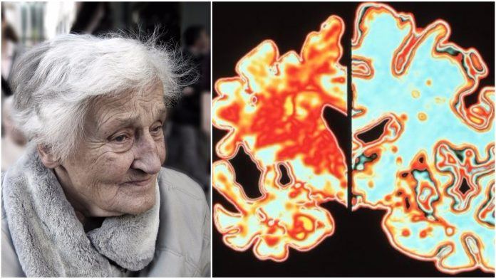 prepoznati simptome alzheimera