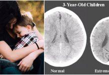 majčina ljubav mozak djeteta