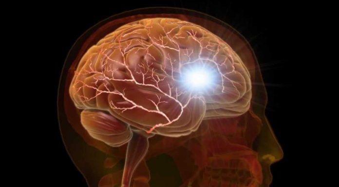 koji dio glave boli