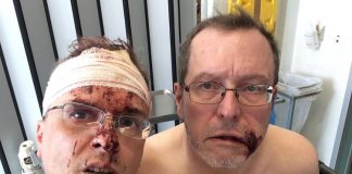 Hrvatica i njen dečko metalnom šipkom pretukli gay par u Belgiji