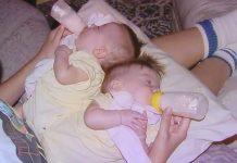 Riskantna operacija razdvajanja sijamskih blizanaca urodila je plodom, pogledajte ih nakon 17 godina