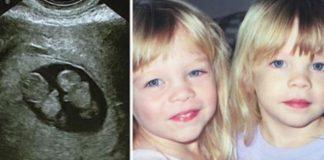 Blizanka se nije odvajala od 12-godišnje sestre koja je pala u komu, a onda je uslijedilo čudo