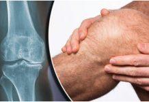 Prirodni lijek bolna otečena koljena