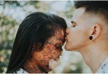 Božji čovjek se zaručio s djevojkom koja ima neizlječivu kožnu bolest