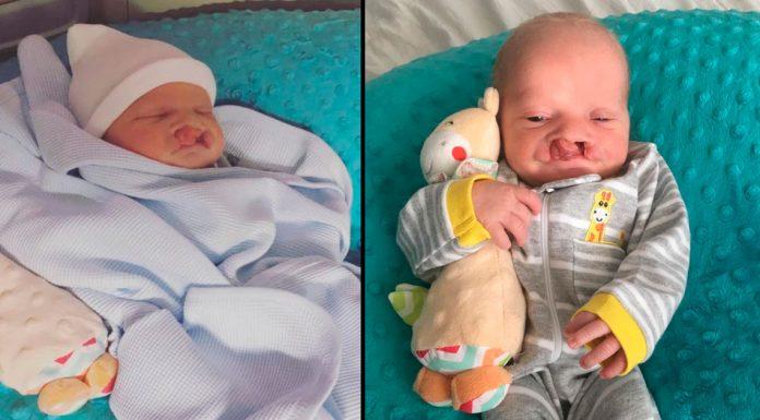 Prijatelj je rekao novom tati da treba pobaciti dijete rođeno sa zečjom usnom