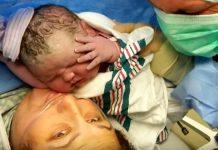 Majka carskim rezom rodila bebu tešku 6,5 kilogram