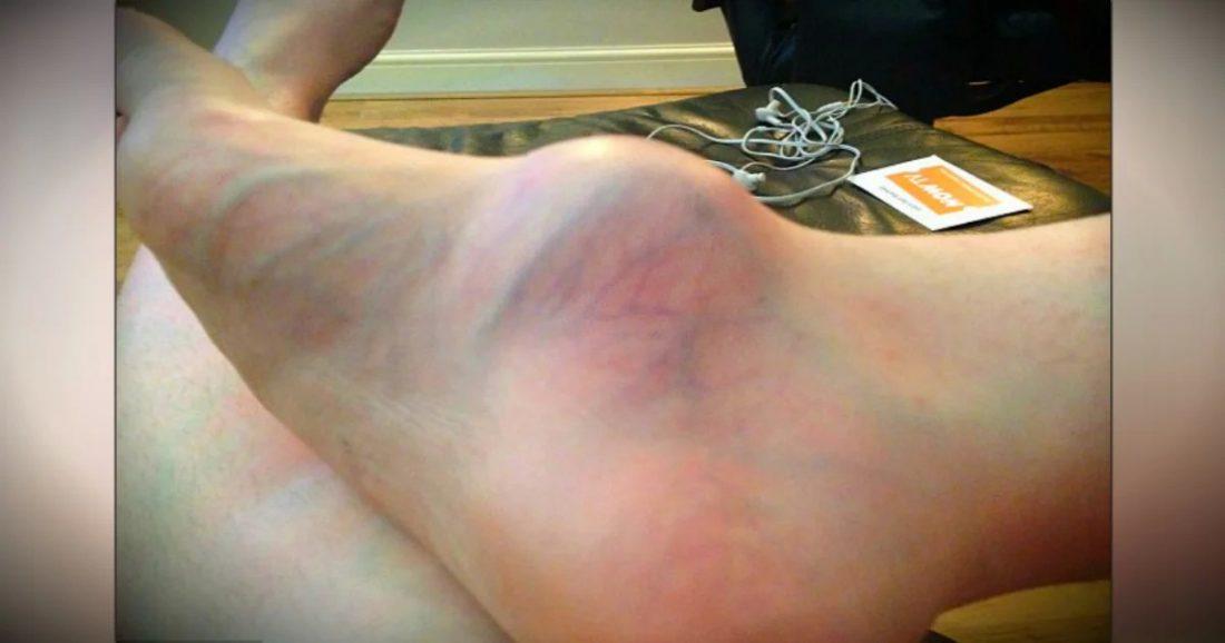 Upozorenje žene koja je 12 godina ignorirala kvrgu na nozi