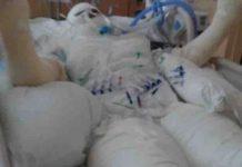 Jezivi izazov se širi internetom: Bolnice pune tinejdžera s užasnim opekotinama