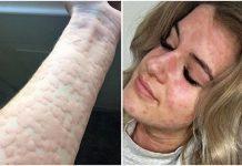Žena alergična na zimu može umrijeti ako se dobro ne obuče