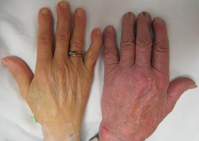 znakovi anemije prirodni lijekovi