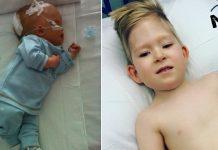 dječak rođen bez mozga