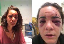 Žena koja se izgubila usred noći svjedoči o seksualnom napadu