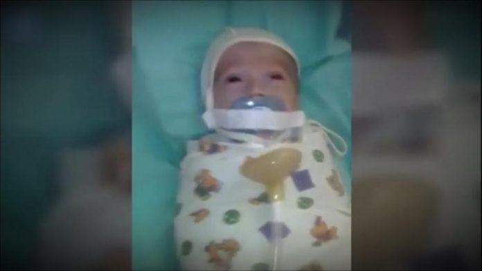 U ruskoj bolnici bebi zalijepili traku na usta da ne plače
