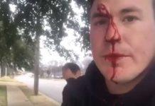 pro-life aktivist napadnut ispred klinike za pobačaje
