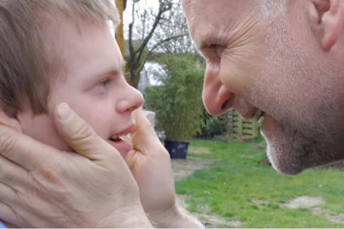 Dječak s Downovim sindromom koji je preživio pobačaj umro u 21. godini
