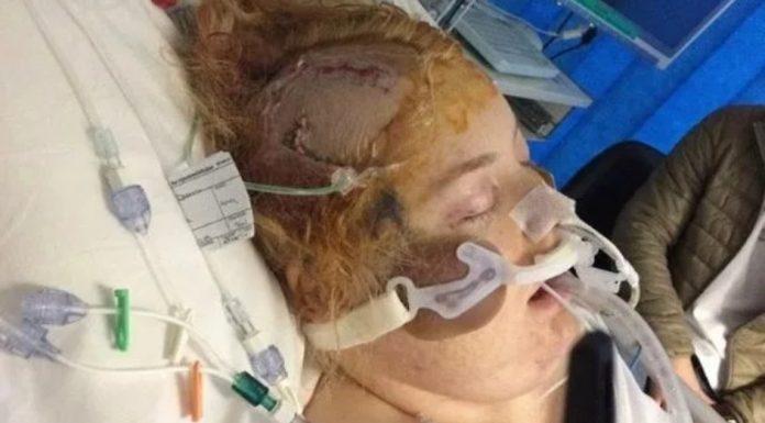 Liječnici su je stavili u induciranu komu dok se tijelo borilo da preživi