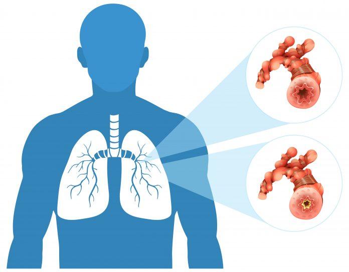 Znakovi koji upućuju na rak u plućima čak i ako nismo pušači