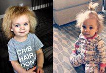 djevojčica sindrom nečešljive kose