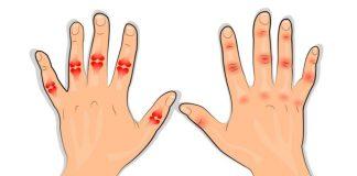 artritis jednostavne vježbe