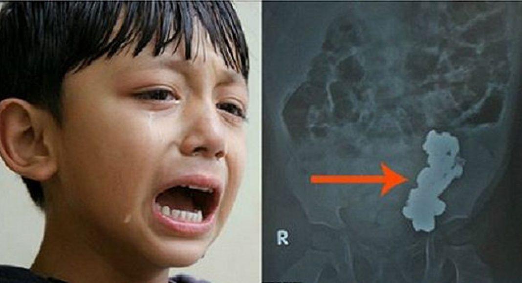 dječak bolovi u trbuhu