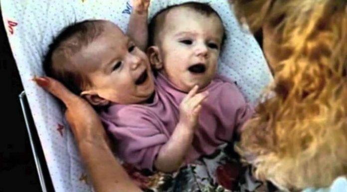 Doktori su razdvojili sijamske blizanke kada su imale 6 mjeseci