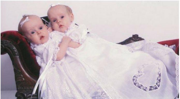 sijamske blizanke razdvojene