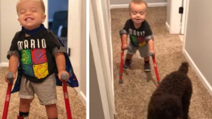 Dječak sa spinom bifidom prvi je put prohodao