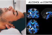 Alkohol oštećuje dijelove mozga koji kontroliraju misli i pokrete