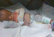 dječak rođen bez kože