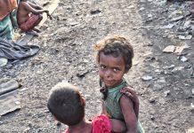 Opasna kolera zahvatila 100 tisuća djece u Jemenu