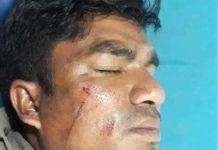 Napadnut pastor u Nepalu